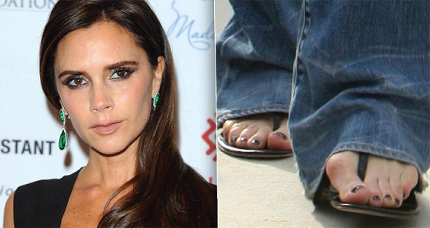 dugotrajno nošenje obuće s visokom petom, može izazvati bolove u nogama i leđima,