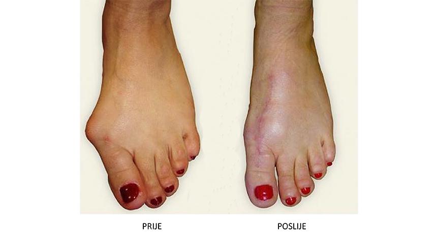 operaciju deformacije palčane kosti (haluks valgus – najčešću prednju deformaciju stopala)